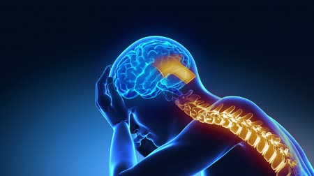 az emberi bőr : Hurt spine - pain rising up to the brain  Stock mozgókép