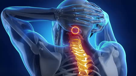 plecy : Backbone pain problem  Wideo