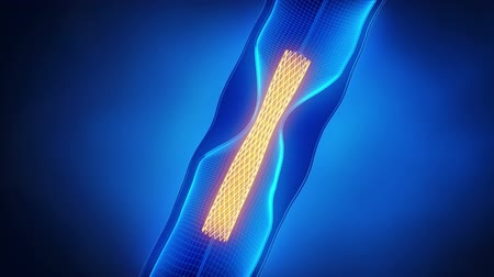 angioplasty : Angioplasty with stent catheter x-ray look