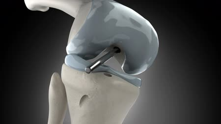 chirurgie : Knee arthroscopic cruciate ligament replacement stage