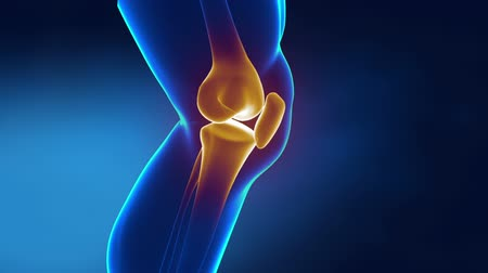 kolano : Pain in knee with therapeutic effects