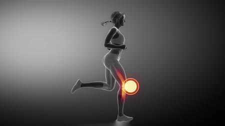 kolano : Runnig woman focused on knee joint