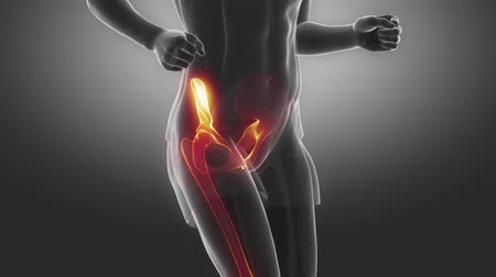 biodro : Jogging man hip joint injury concept Wideo
