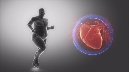 рентгенологическое : Overweight man heart issue Стоковые видеозаписи