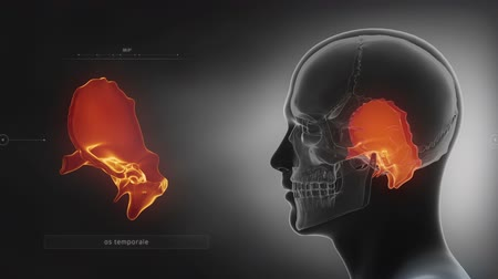 зубы : Black x-ray skull animation - Temporal bone - os temporale