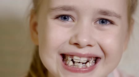 brackets : portrait of a cute baby, who opens his mouth and shows braces, the girl looks happy