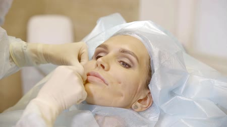 mezoterapia : doctor is making a face lifting for pretty adult woman using medical threads, cosmetical therapy Wideo