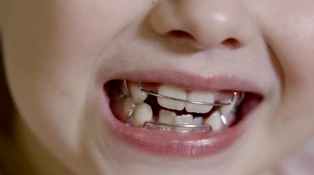 brackets : mouth of child with dental braces on teeth for correcting the bite, preschooler is smiling Stock Footage