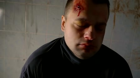sertés : drug addict man is under the influence of drugs, is looking with bulging eyes, bloody wound is on his forehead