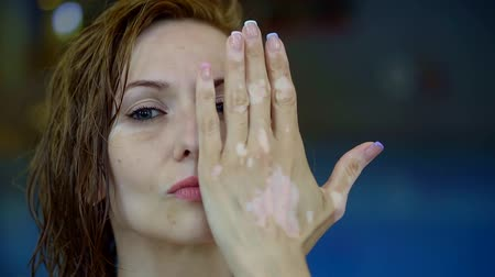 az érintett : sad beautiful woman is closing part of her face by hands with patches of vitiligo condition Stock mozgókép