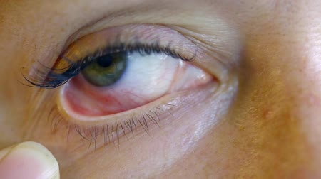 devastated : Close up. Female eyes with chemical burns pairs glue after the eyelash