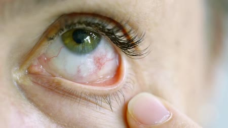 szempillák : Close up. Female eye with chemical burn of the cornea with pairs of glue after eyelash extension procedure