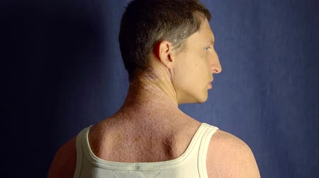 antimicrobial : View from behind of a man with unhealthy skin turning his head indoor, white tank.