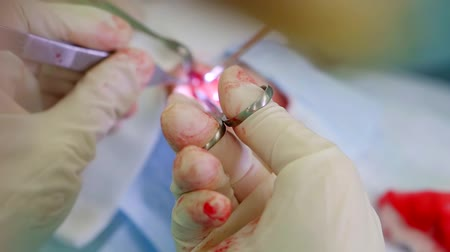 dokular : blooded rubber gloves of surgeon during operation, holding scissors and tongs Stok Video