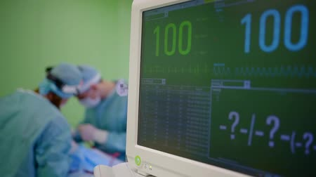 vital signs : vital signs on a monitor of modern medical equipment during operation in a clinic, surgeons Stock Footage