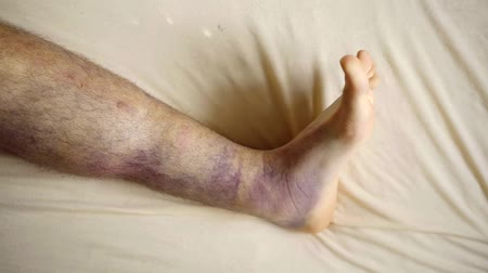 melisa : Mans leg covered in big bruises.