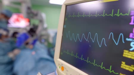 heart rate : diagram of vital activity of patient in operating table in surgery, close-up of monitor Stock Footage