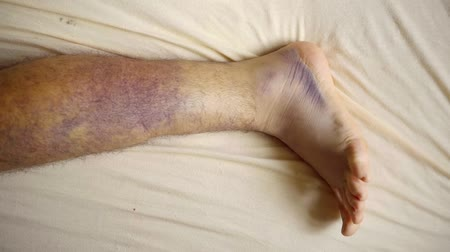 bruising : man is trying to move fingers of his broken leg and foot on hospital bad, close-up