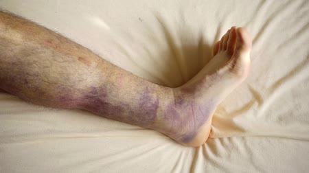 bruising : male patient of hospital is moving his foot, his leg is covered by large bruises after bone fracture