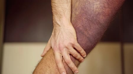 bruising : man is touching and stroking his leg with huge purple bruise, close-up view