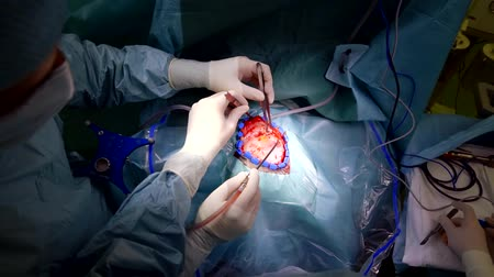 temporal : close-up skull trepanation surgery to remove a tumor in the temporal lobe the surgeon opens access to the skull bone by cutting the patients soft tissue