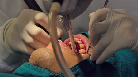 goma : Professional dentist treatment and cleaning teeth from plaque or procedures of dental.