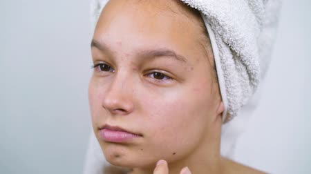 хмурый : Teenage girl in bath towel touching face having skin problems Стоковые видеозаписи
