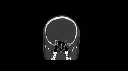 computed : Computed medical tomography MRI scan of healthy male head Stock Footage