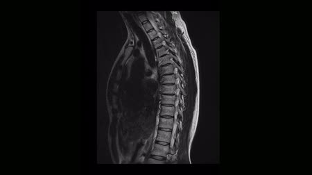 カラット : Computed medical tomography MRI scan of the thoracic spine of a man with osteochondrosis 動画素材