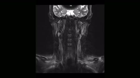 computed : Computed medical tomography MRI scan of the cervical spine of a man with osteochondrosis