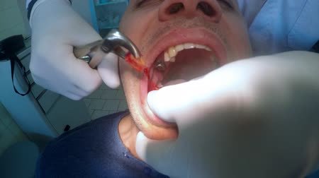добыча : 4K Tooth extraction. Dentist pulls the tooth out. Preparation for implants. UHD stock footage