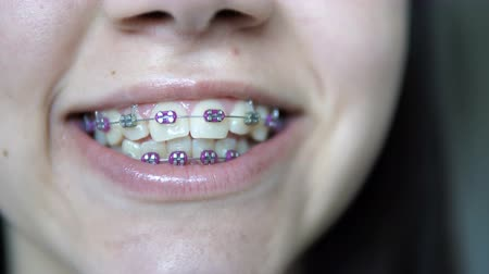 braces smile : View of girl showing braces for orthodontic treatment