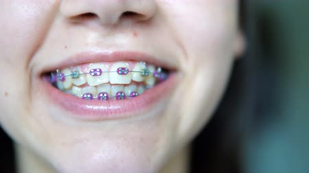 brackets : Beauty girl tongue over orthodontic teeth braces accessories. Orthodontics treatment