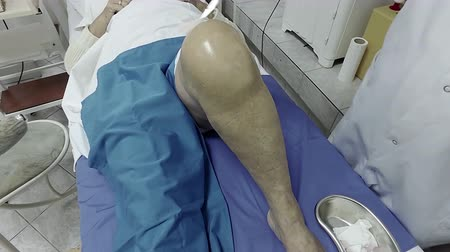 колено : Doctor knee desinfection before inferior injection Стоковые видеозаписи