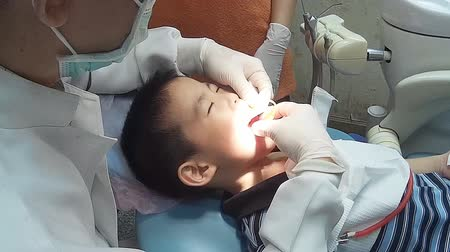 dentysta : Little boy opening his mouth wide during inspection of oral cavity Wideo