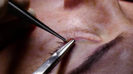 The doctor performs cosmetic surgery. The doctor sutures the patients eyelid. Plastic surgery to rejuvenate the eyes. Wideo