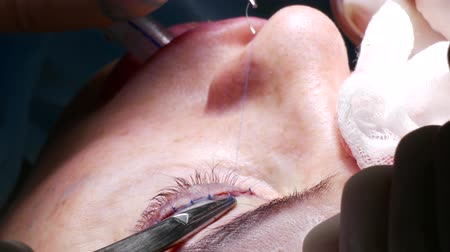 The doctor makes a puncture with a needle with a thread that holds in the clamp for the eyelid century, then makes the knot during a plastic rejuvenation operation. Plastic surgery for blepharoplasty.
