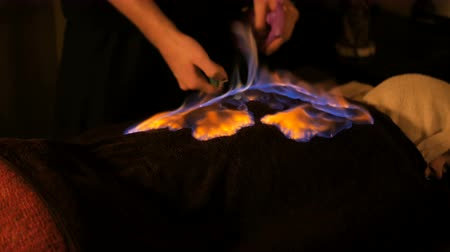 tehlike : Chinese fire massage - Huo Liao therapy. Traditional chinese medicine, fire treatment and bodycare concept Stok Video